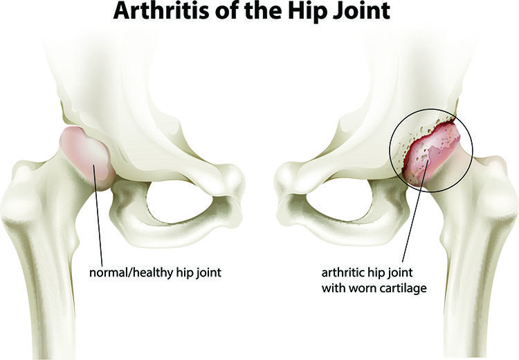 Arthritis Pain Relief In West Orange , NJ - West Orange  Acupuncture Clinic