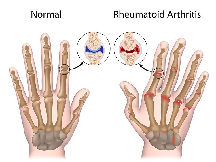 Rheumatoid Arthritis Pain Relief In West Orange , NJ - West Orange  Acupuncture Clinic